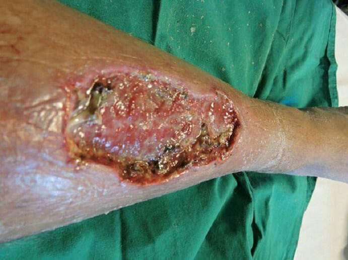 Flesh-eating Bacteria on leg