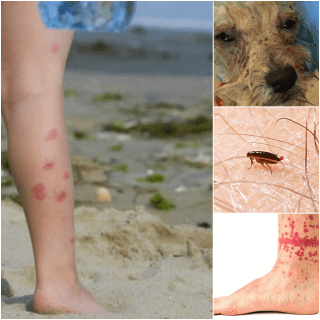 Flea Infestations